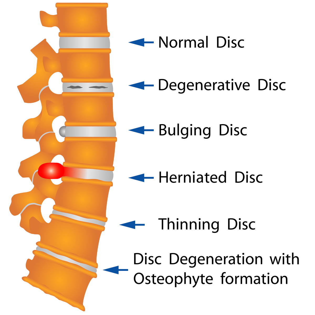 Disc Disorders North Jersey Spine Group