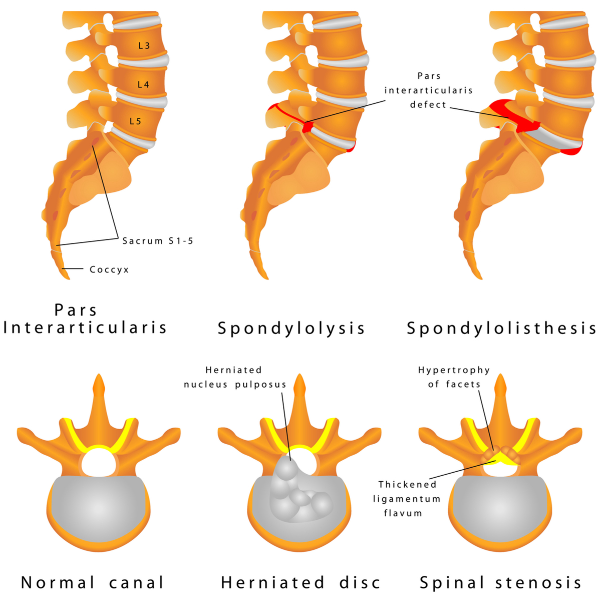 Spondylosis Condition Amp Treatment Northern Nj North