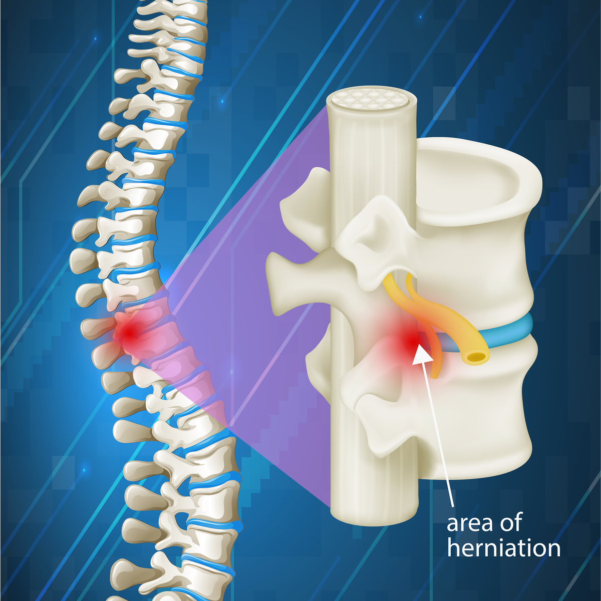 Pinched Nerve Treatment Nj North Jersey Spine Group